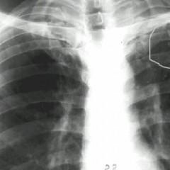 видно ли бронхит на рентгене