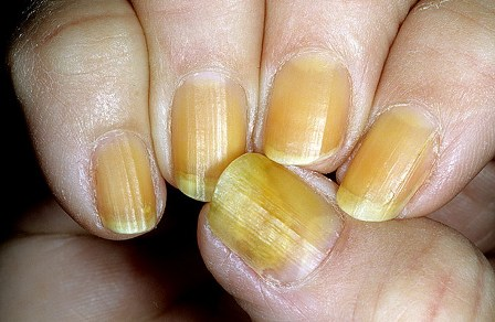 Изменение цвета ногтя тотальная